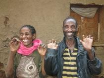 Bekele y CIssay, sin miedo a la lepra